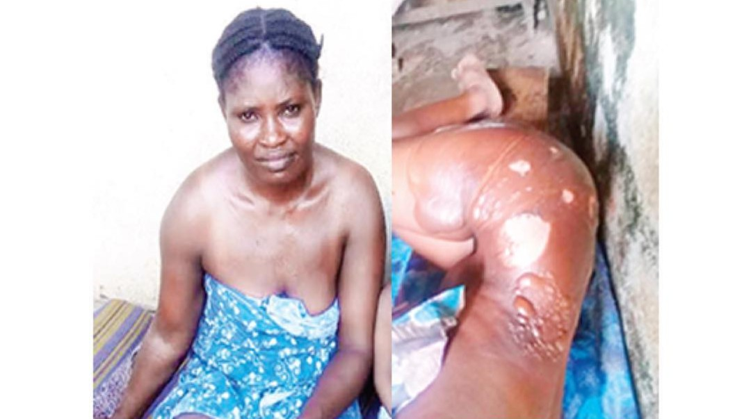 SHOCKING!!! Lady scalds LAWMA staff with hot water for greeting her husband