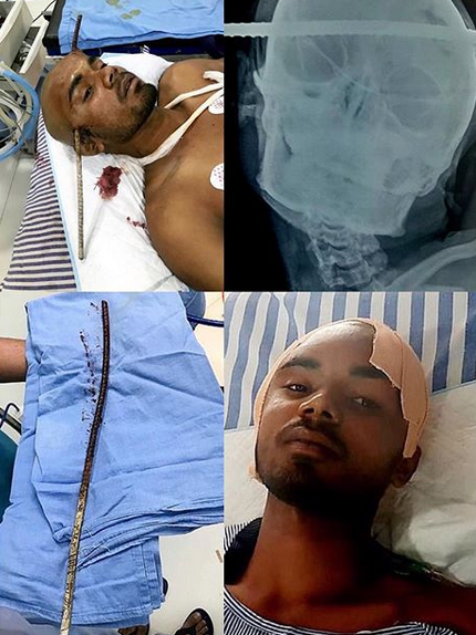 Man survives after being impaled in the head with a rod