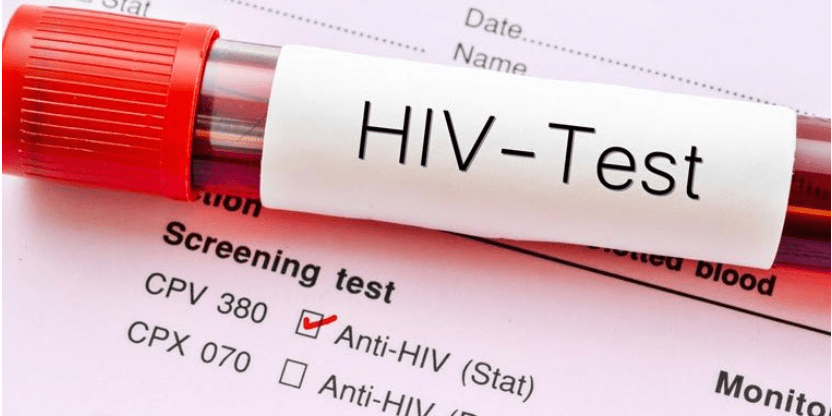 Wedding called off in Jigawa after Groom tested positive to HIV
